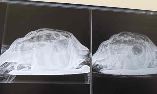 Donna ricoverata con forti dolori addominali, i medici le trovano una tartaruga nella vagina